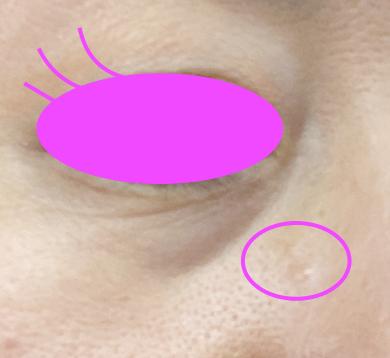 稗粒腫(はいりゅうしゅ、ひりゅうしゅ)ができた